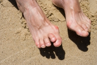 What Type of Shoe May Cause Hammertoe?